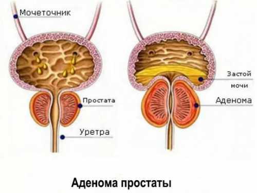 Мужской недуг: аденома предстательной железы