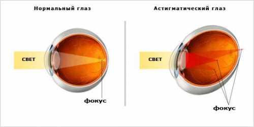 Иногда астигматизм может возникать после травмы или операции глаза