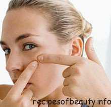 Лечение угрей на лице  в домашних условиях: что