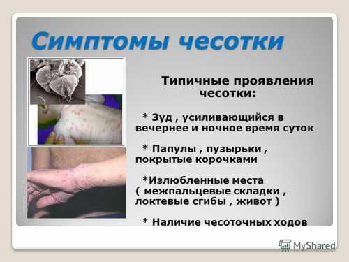 Симптомы, лечение  и профилактика чесотки