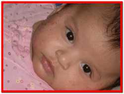 Лечение диатеза у ребенка народными средствами