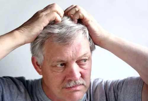 Зуд кожи головы основные причины